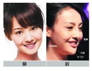 郑爽/假脸姐妹团杨幂为首深陷整容传闻明星盘点图片12k 300x232