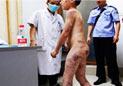 广东河源男童遭继母家暴遍体鳞伤