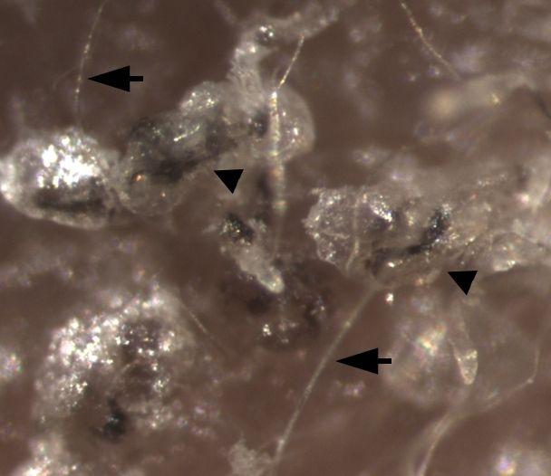 美科学家找到可根治脱发的治疗方法