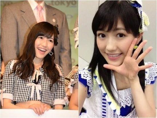 日AKB48成员渡边麻友形象被毁 白眼疱疹照外流