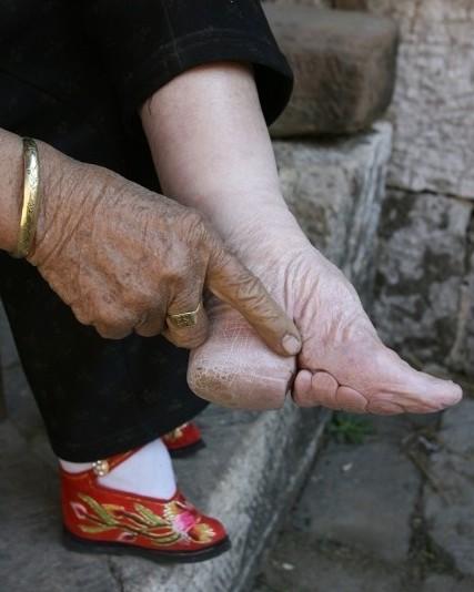实拍三寸金莲裹脚缠足全过程