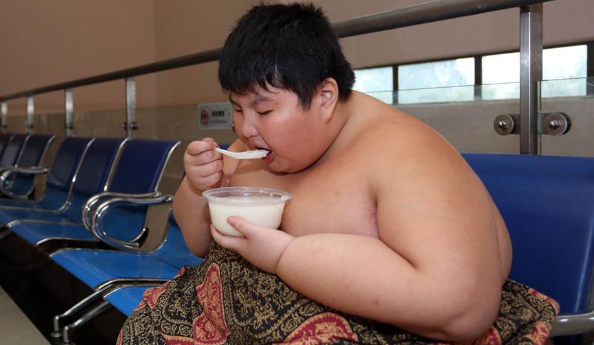 14岁男孩体重300斤