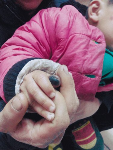 母亲用皮筋包扎孩子伤指 4天绑掉3岁童手指尖