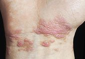 图解:皮肤上的癌症信号