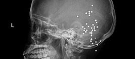成都女子被女儿连射36枪 X光下后脑成马蜂窝