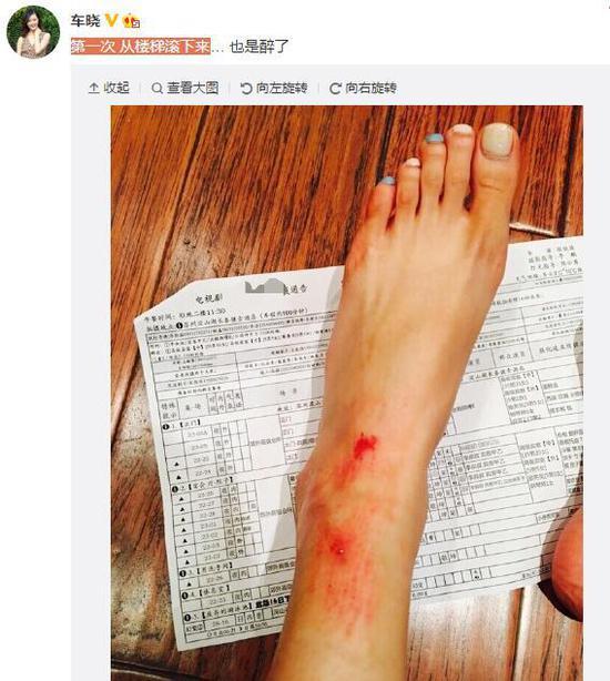 【图文】车晓晒腿部受伤照:第一次从楼梯滚下来(图)