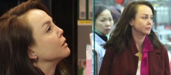 [明星爆料]亚姐韩君婷的鼻子又有新变化 不仅歪两侧还凹陷