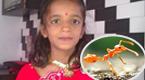 印度女孩耳朵成蚁穴 取出1000只大蚂蚁