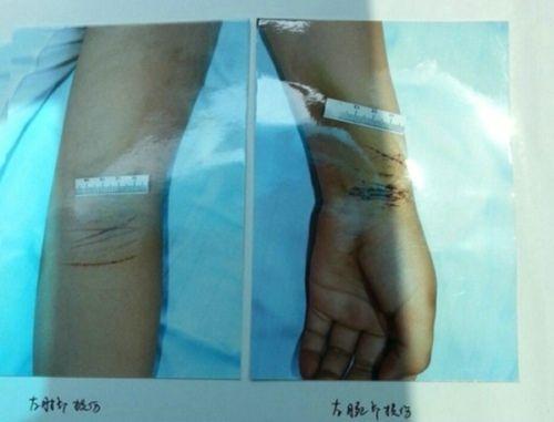 为自救,欣欣划伤自己的手腕  伤者家属供图