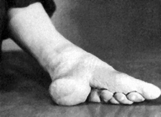 为什么要裹小脚 裹小脚真实照片 古代嫔妃侍寝照片 裹小脚怎么走路