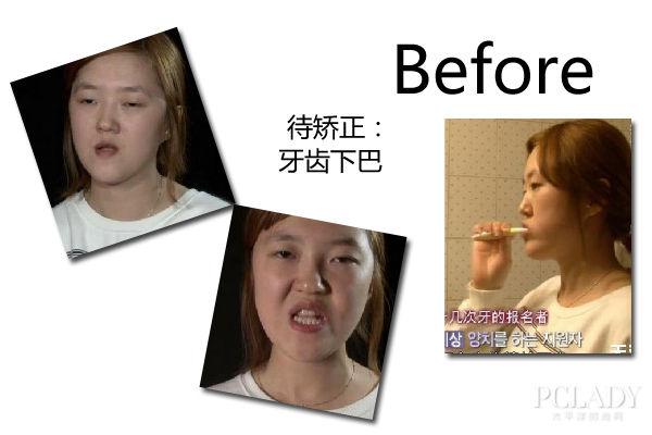 丑女整容脱胎换骨 韩国节目改变命运