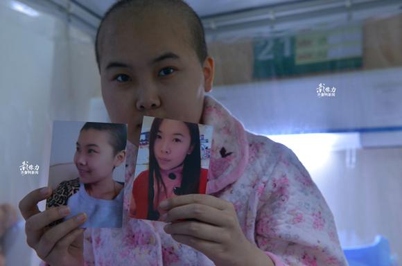 经过近30次化疗后,杜丽媛头发已经严重脱落,面部浮肿,与病前的貌美照片形成了鲜明对比。