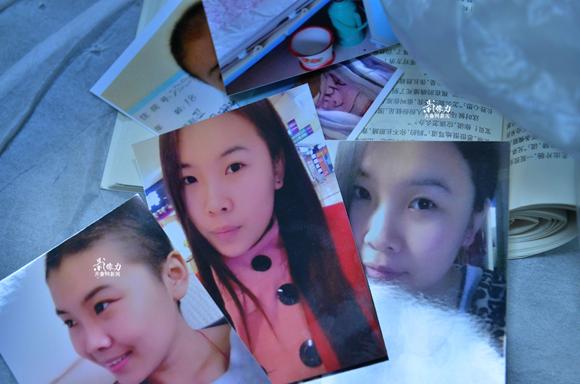 19岁白血病女孩病前的貌美照片。