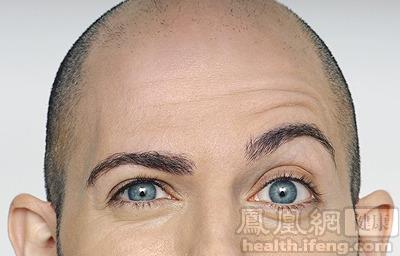 眼睛经常疲劳会是什么原因?怎么办?