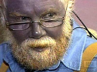 3.蓝皮肤症人体的皮肤有多种颜色,白色、黄色、黑色,或许你没有听图片