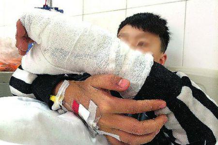 陕西:男孩在学校捡到子弹_拇指被炸断(图)