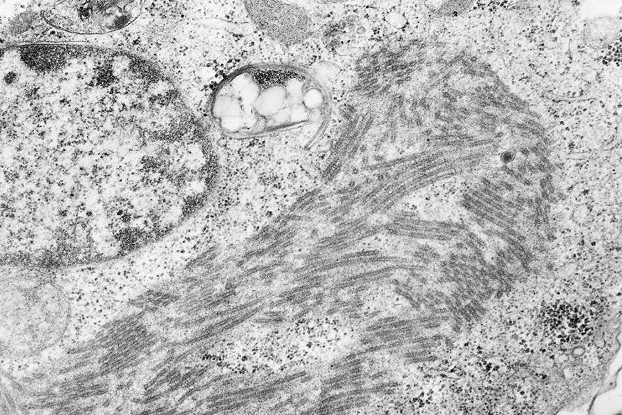 """有些患者在感染埃博拉病毒48小时后便不治身亡,而且他们都""""死得很难看"""",病毒在体内迅速扩散,大量繁殖,袭击多个器官,使之发生变性,坏死,并慢慢被分解。病人先是内出血,继而七窍流血不止,并不断将体内器官的坏死组织从口中呕出,最后因广泛内出血、脑部受损等原因而死亡。"""