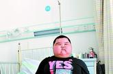 小豪在广州一家医院治疗,小豪的体重已经顺利地减下了6斤。