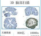 3D脑部扫描