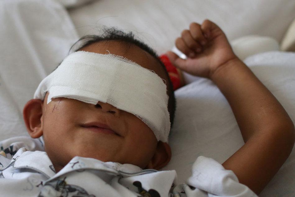 山西被挖双眼男童:不知道自己已经失去双眼
