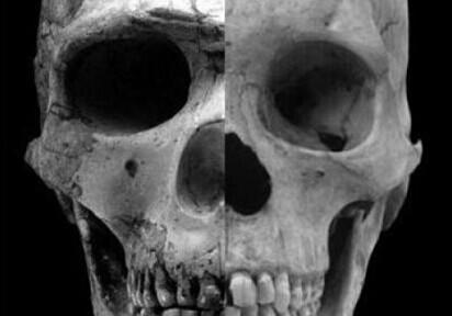 科学家发现人类头骨变化的方式预示着睾丸激素的减少