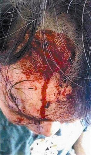 伤者头部及面部血迹斑斑。