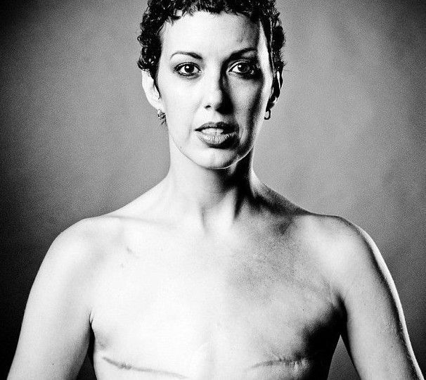 切除胸部的女人图 凤凰网