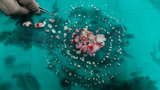 印度少年牙疼难耐开刀从嘴中取出232颗牙(图)