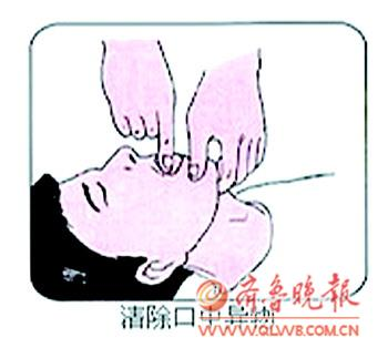 開通氣道:仰頭舉頜(頦)法,先清理口腔異物(嘔吐物、血塊等)去掉假牙,一手食指、中指置於下頦處,抬起下頦,使頭後仰,一手托頸後,頭後仰的程度以下頜和耳垂的聯線與地面垂直為宜,後仰不要過度。