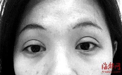 清秀女生割双眼皮 割成鱼眼破相_资讯频道_