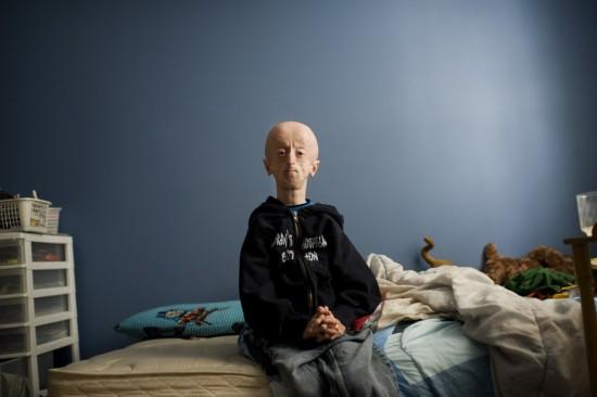 16岁早衰症男孩如60岁老人:服用失败抗癌药维生