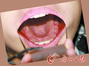无良牙医好坑爹姑娘被拔牙14颗